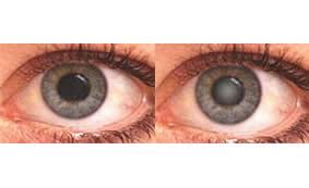 Il farmaco corruga medicine sotto risposte di occhi