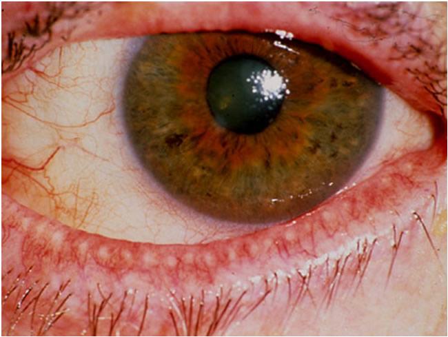 infezione renale problemi agli occhi