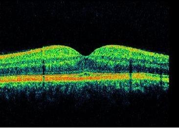 Quello che è il cervello thrombophlebitis