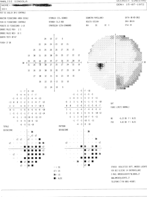 malattie degli occhi casi clinici reali :Empty Sella