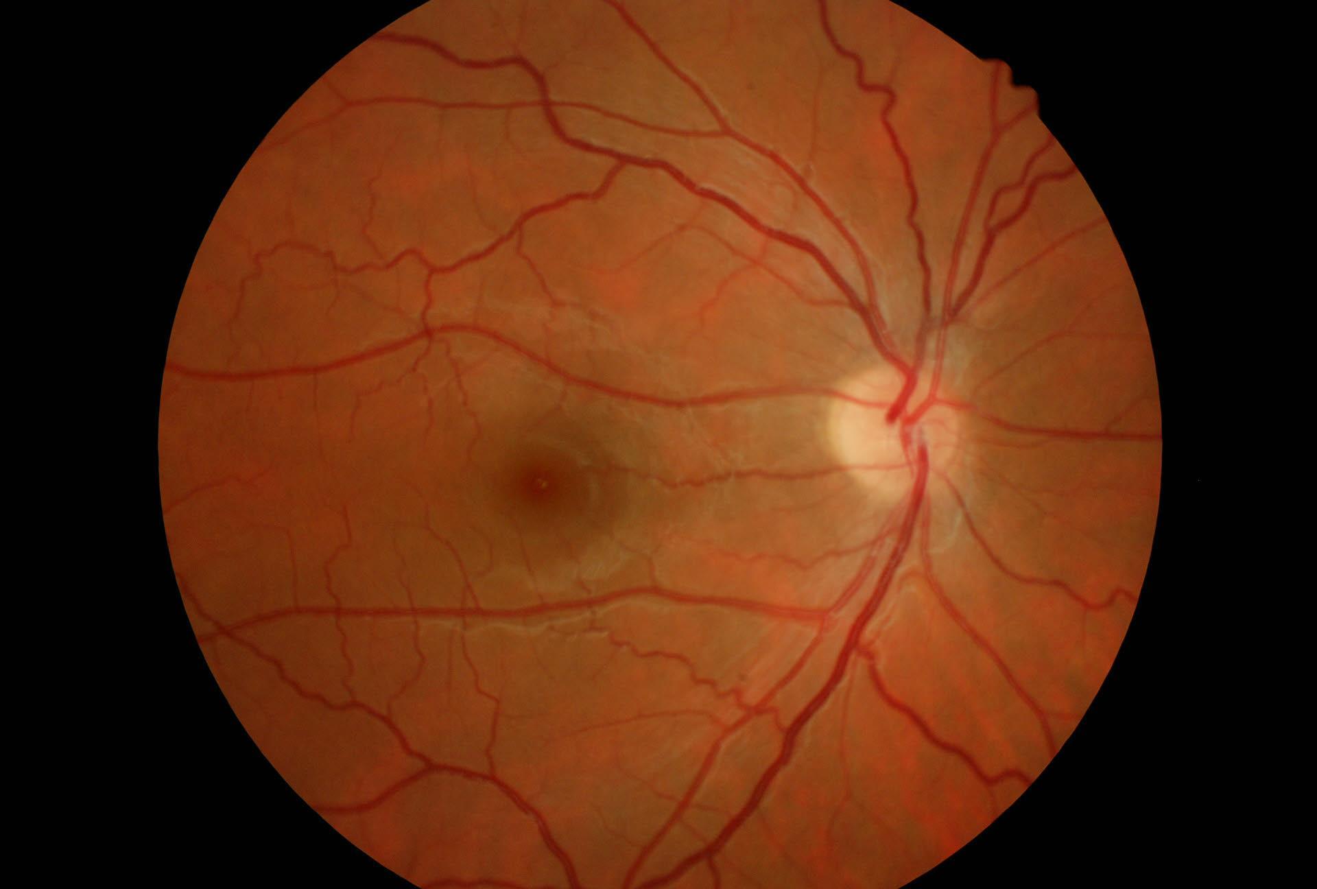 malattie degli occhi casi clinici reali :Tortuosità vasale..